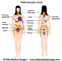 Referred pain chart, labeled diagram.