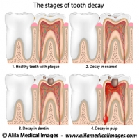 Plaque and tooth decay, medical drawing.