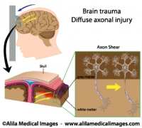 diagram of concussion mri brain and nervous system gallery - medical information ...