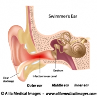 Outer ear infection, labeled diagram.