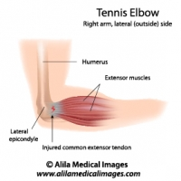 Tennis elbow sport injury, labeled diagram.