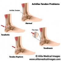 Achilles tendon problems, labeled diagrams.
