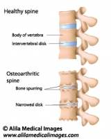 Osteoarthritis of the spine, labeled drawing.