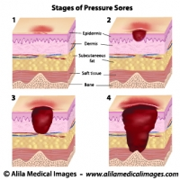 Stages of pressure sores, labeled diagram.