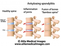 Ankylosing spondylitis of the spine, labeled diagram.
