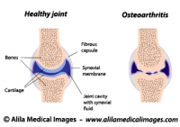 Synovial joint normal and arthritis, labeled diagram.