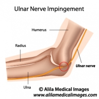 Ulnar nerve anatomy, labeled diagram.