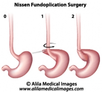Nissen Fundoplication Surgery, medical drawing.