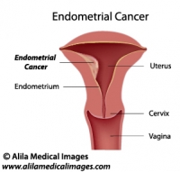 Uterine cancer, labeled diagram.
