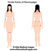 Tender points of fibromyalgia, medical drawing.