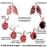 Respiratory system gallery medical information illustrated smoking and emphysema labeled diagram ccuart Images