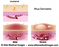 Contact dermatitis, medical drawing.