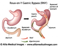 Roux-en-Y Gastric Bypass surgery, labeled diagram.