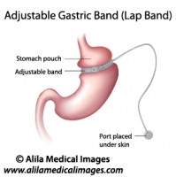 Gastric Band Weight Loss Surgery, labeled diagram.