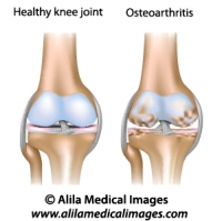 Osteoarthritis of knee joint, medical drawing.