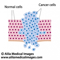 Cancer cells in a growing tumor, labeled diagram.