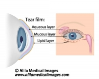 Dry eye syndrome, labeled diagram