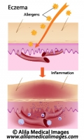Eczema, allergic reaction, labeled diagram.