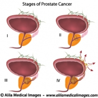 Prostate cancer staging, unlabeled diagram.