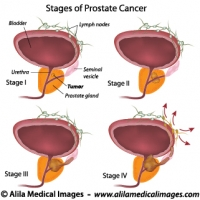 Prostate cancer staging, labeled diagram.