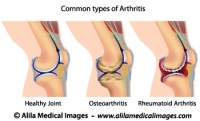 Common types of arthritis, medical drawing.