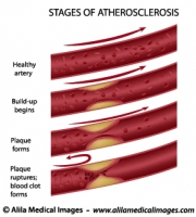 Stages of atherosclerosis diagram
