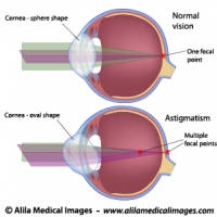 Astigmatism, labeled diagram.