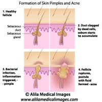 Skin acne formation, labeled diagram.