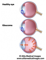 Glaucoma, unlabeled diagram.