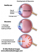 Glaucoma, labeled diagram.