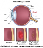 Macular degeneration, labeled diagram.