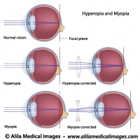 Common eye defects diagrams