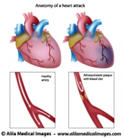 circulatory system Archives - Medical Information Illustrated